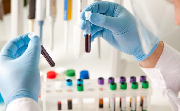 Actualización en técnicas y métodos de laboratorio clínico