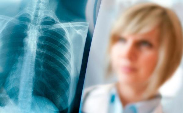 Radiología pediátrica. Indicaciones, técnicas y optimización